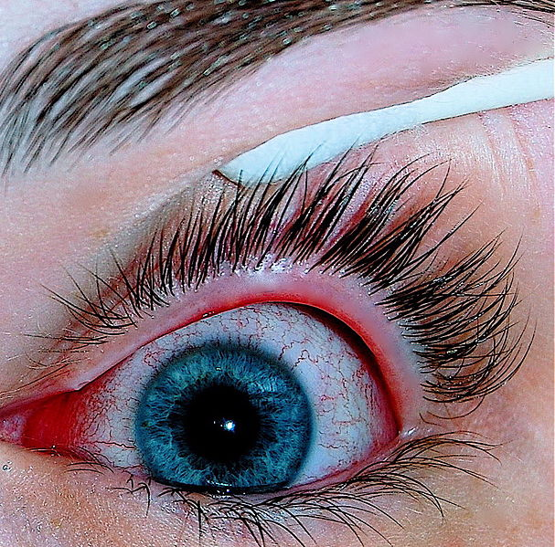 Eye infected with pink eye or conjunctivitis