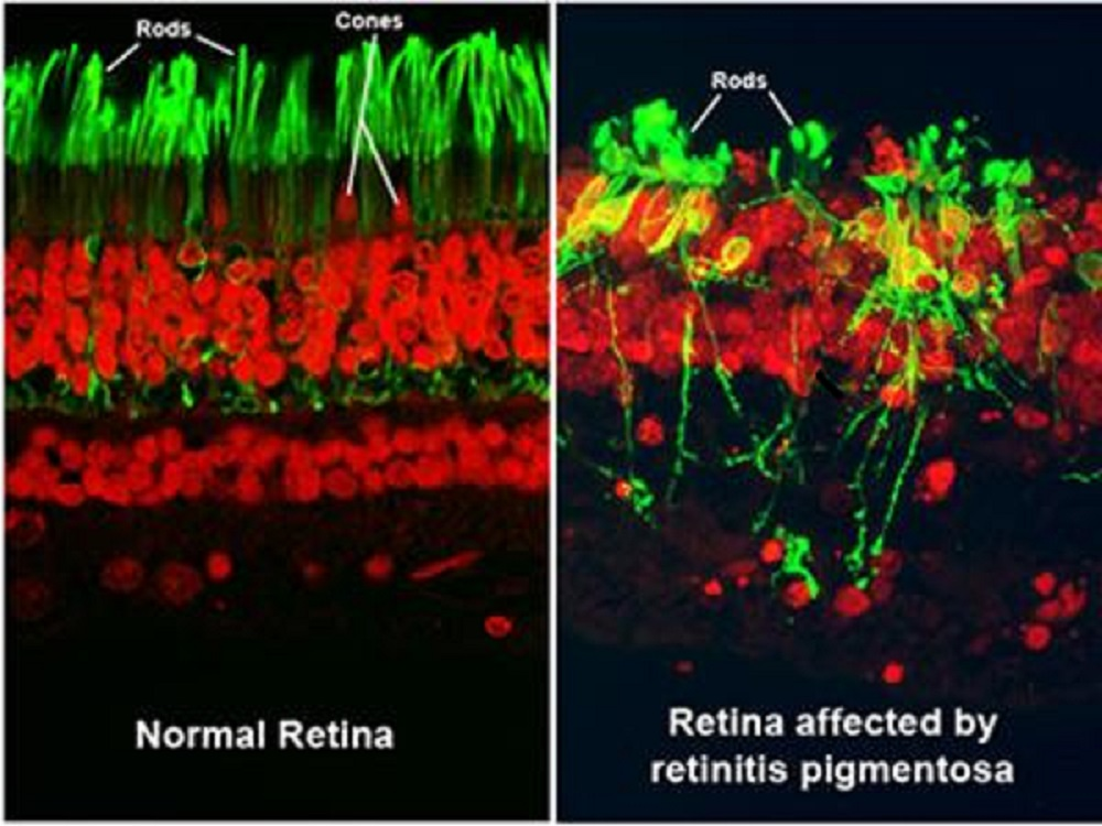 picture of normal retina on theleft and retina with RP  on the right. downloaded from National Eye Institute. mage courtesy of Robert N. Fariss, Ph.D., chief of the NEI Biological Imaging Core, and Ann H. Milam, Ph.D., former professor in the Department of Ophthalmology at the University of Washington.